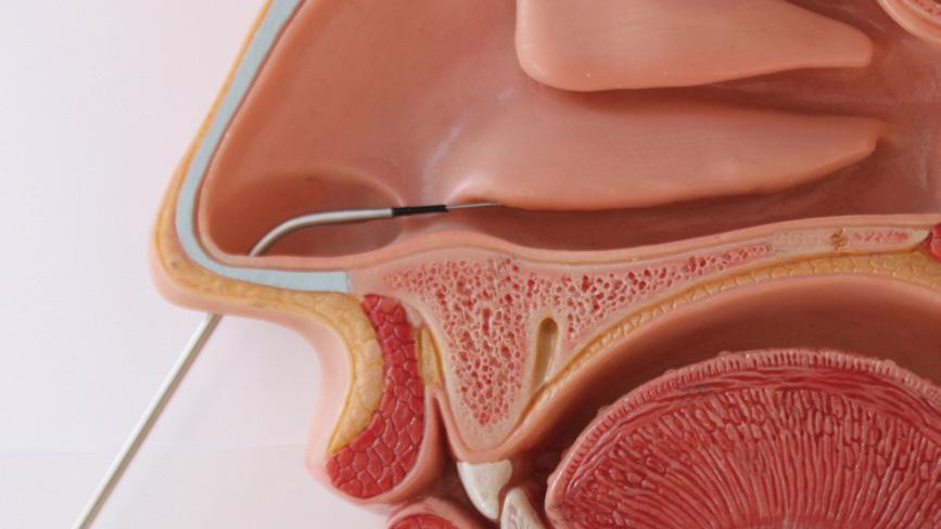 Konchoplastyka (RaVoR - zmniejszanie małżowin nosowych)
